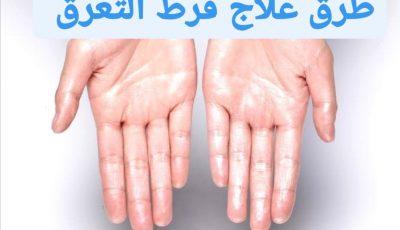 طرق علاج فرط التعرق والأمراض التي تتسبب في حدوثه.