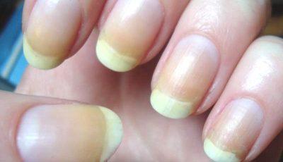 أسباب اصفرار الأظافر وطرق علاجها