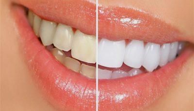 اصفرار الأسنان.. أسبابها وطرق علاجها وتنظيفها في البيت